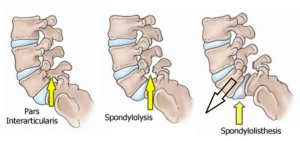Anatomy-of-Spondylolisthesis